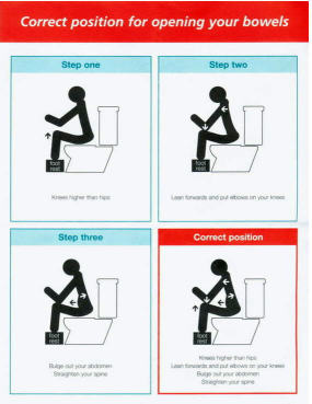 The correct position for a bowel movement on a raised toilet.