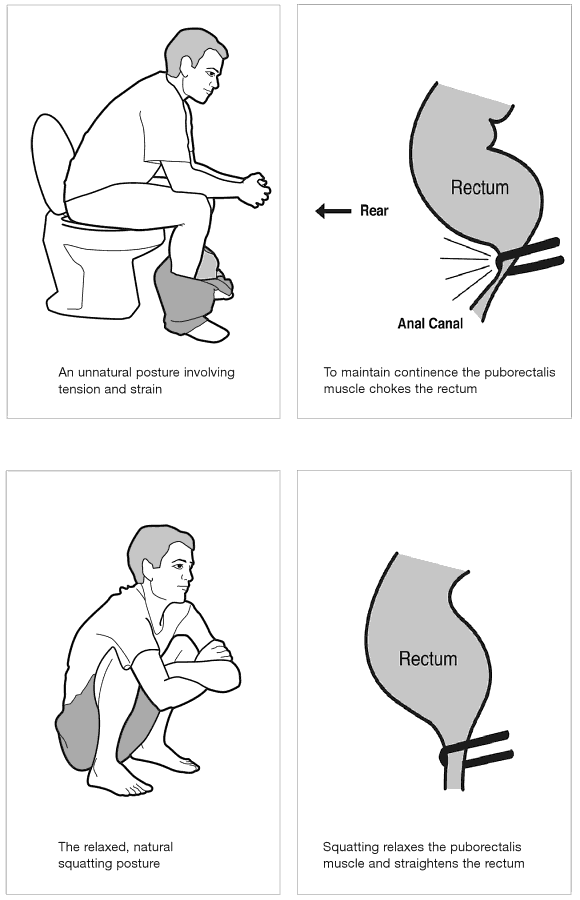 Squat Or Sit Squatters And Thrones Among The Toilets Of